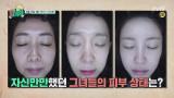 전효성, 이지혜, 홍신애의 피부 진단 결과가 궁금하다!